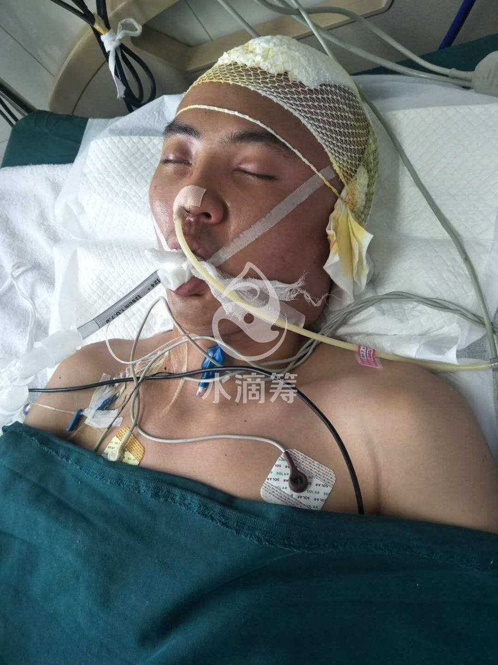 Chinese Boxer Still in Coma Two Months After Fight